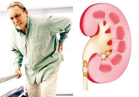 Người cao tuổi thường mắc các bệnh về thận