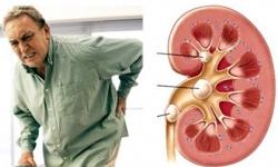 5 biến chứng nguy hiểm của sỏi thận nếu không được chữa trị kịp thời