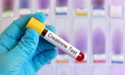 Chỉ số Creatinin là gì? ý nghĩa của chỉ số Creatinin trong cơ thể?