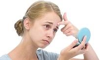 Rối loạn nội tiết tố nữ gây mụn và cách điều trị